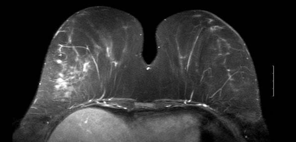 Mamography 1