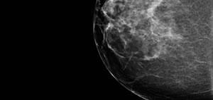 Mamography 2